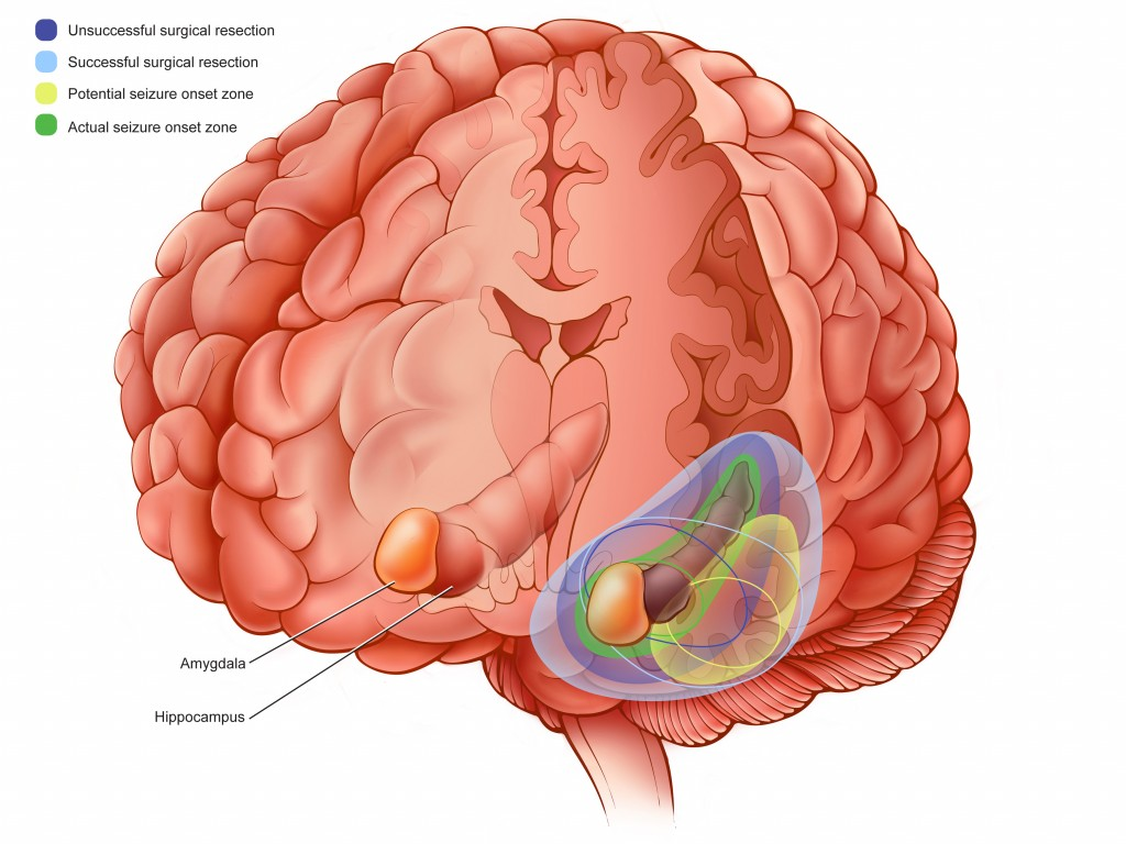 Color illustration of brain with surgical options shown as color labels. Color key in the upper left corner.