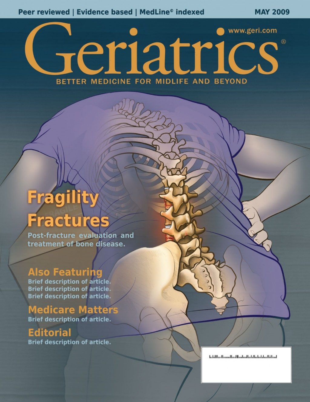 Geriatrics Magazine Mock-up. With a full-color illustration showing a fragility fracture in an elderly patient.