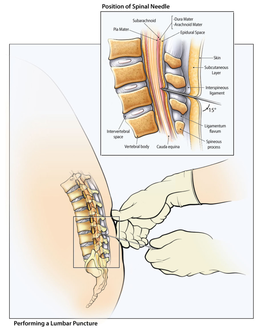 Color illustration showing the correct positioning for performing a lumbar puncture. Also shows a cut-away of the needle passing through tissue layers.